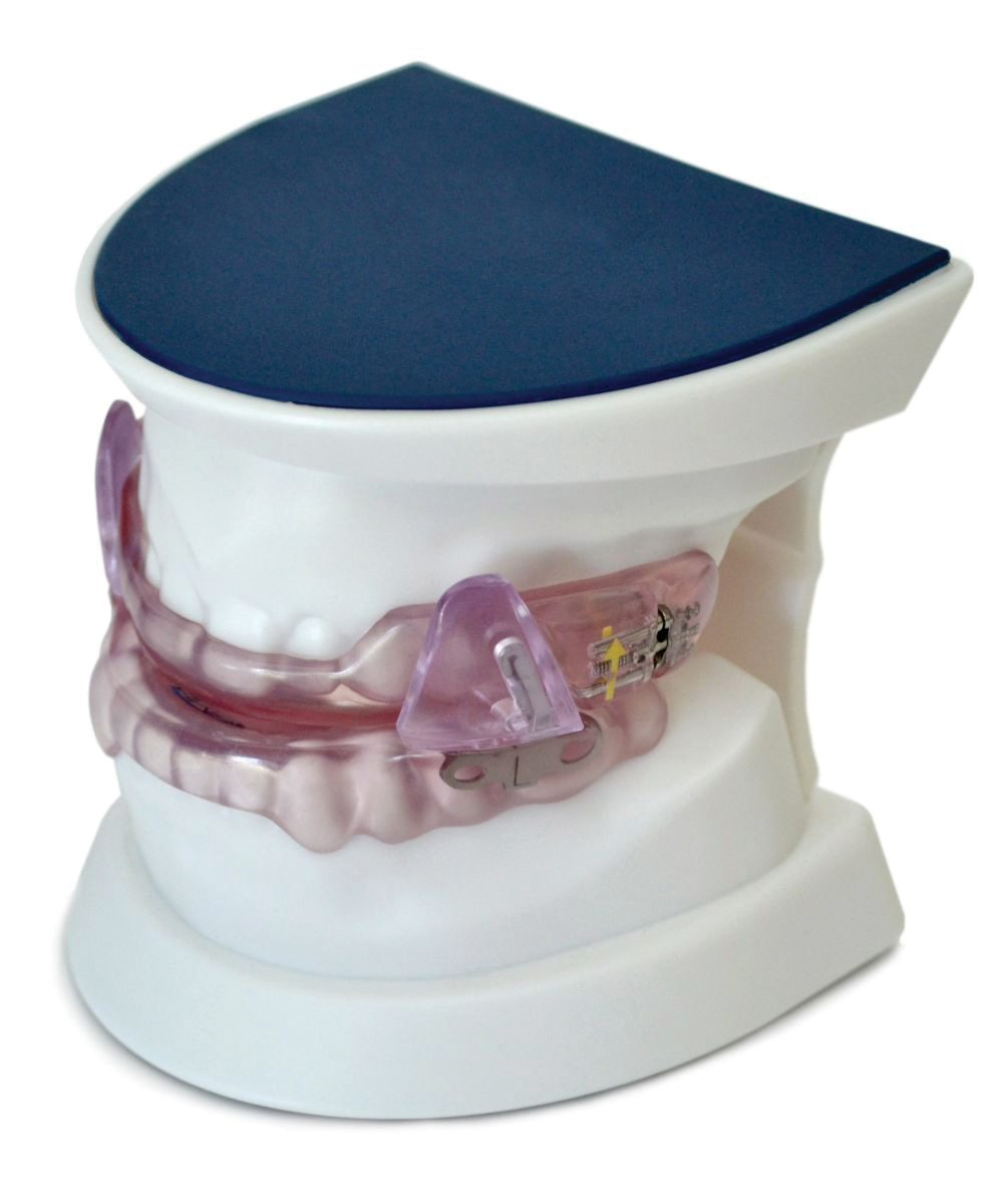customized oral appliance on a set of model teeth